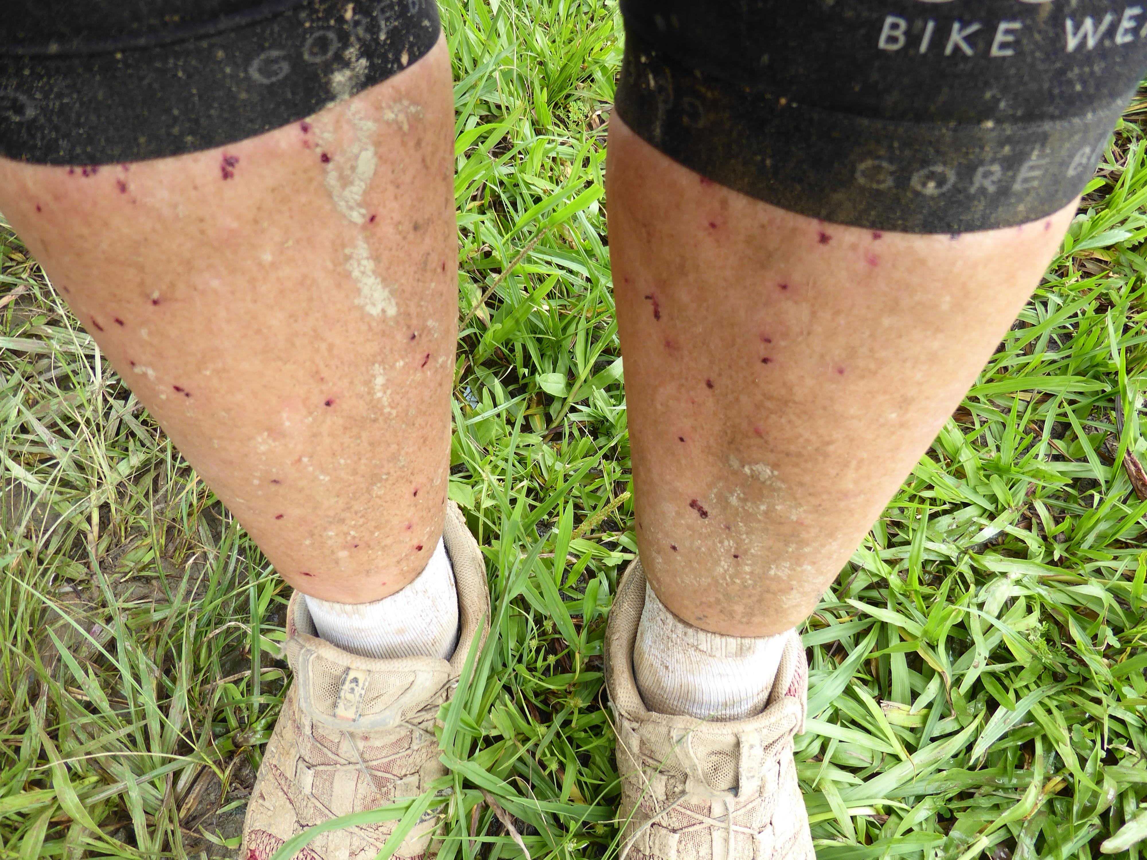 Som mine ben så ud 5. november lige efter myggeangrebet.